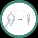 مراحل نهان سازی کلیتورال
