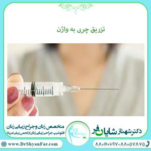 تزریق چربی به واژن