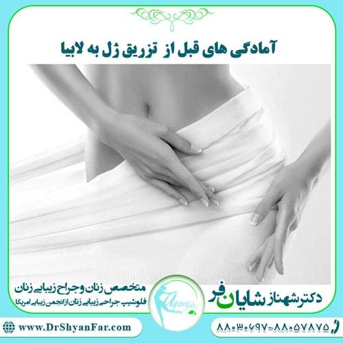 آمادگی های قبل از تزریق ژل به واژن